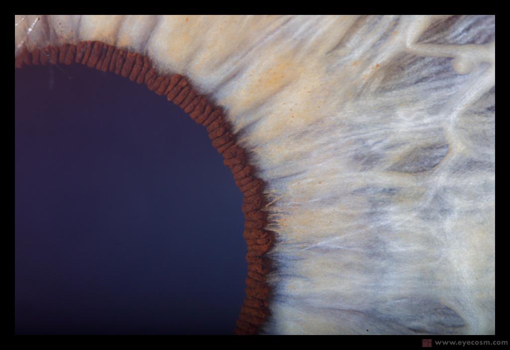the sunflower eye